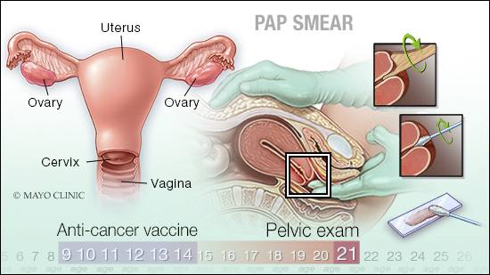 a medical illlustration of a Pap smear examination, the female reproductive organs, and the timeline of ages for anti-cancer vaccines and pelvic exams