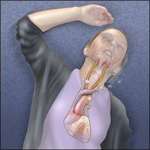 a medical illustration of the cause of fainting