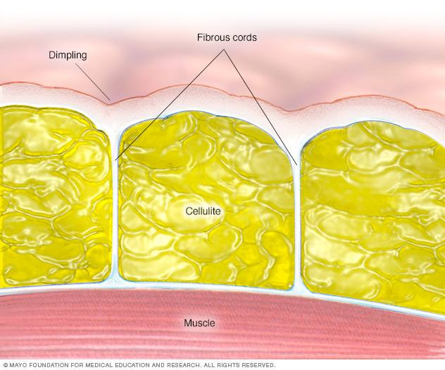 medical illustration of skin with dimpling, fibrous cords, muscle and celluite
