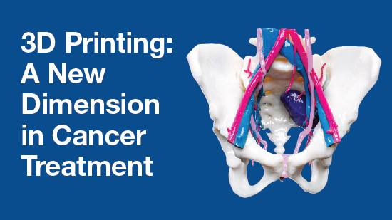 Infographic image for 3D printing for cancer treatment