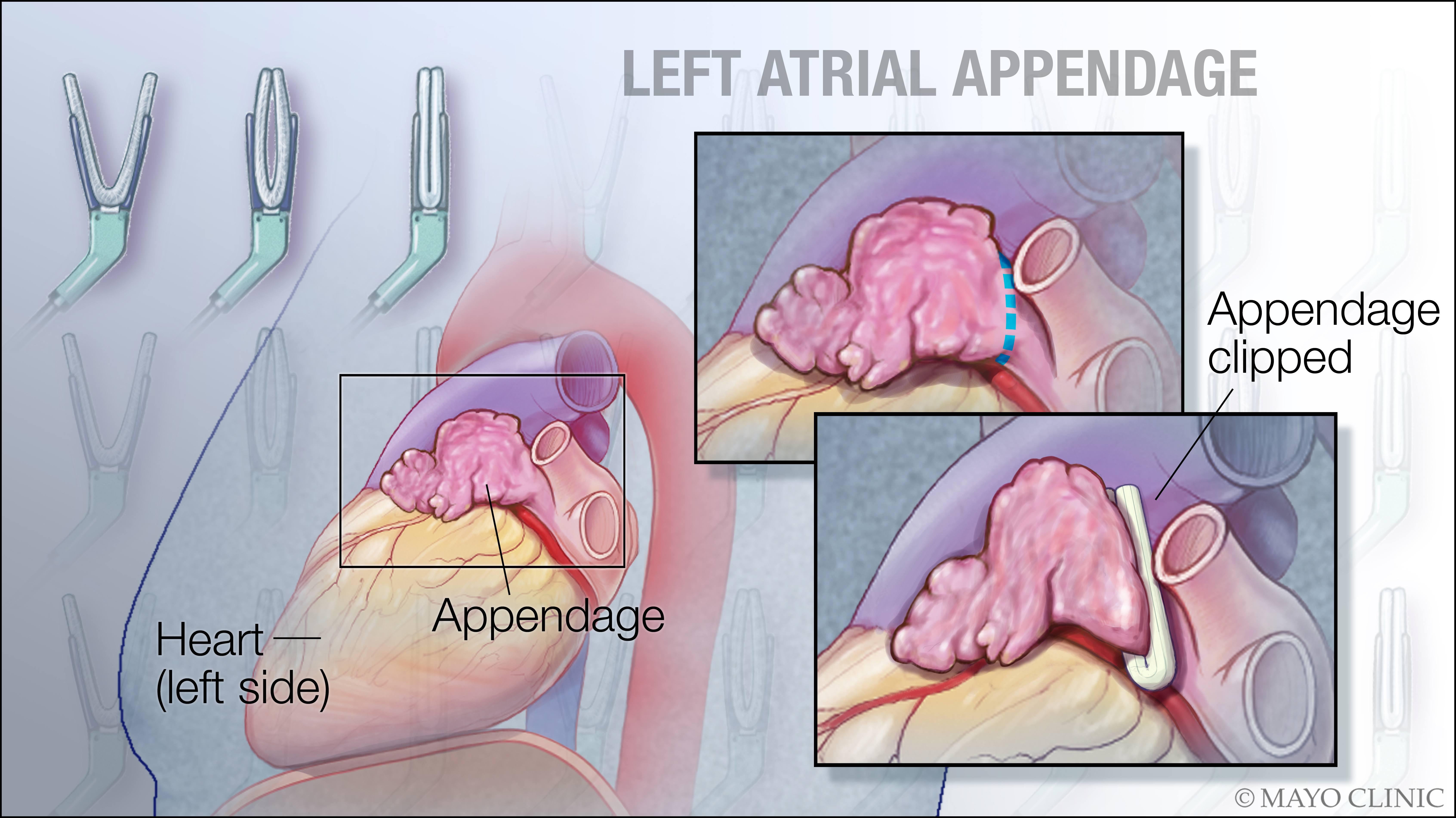 illustration of left atrial appendage