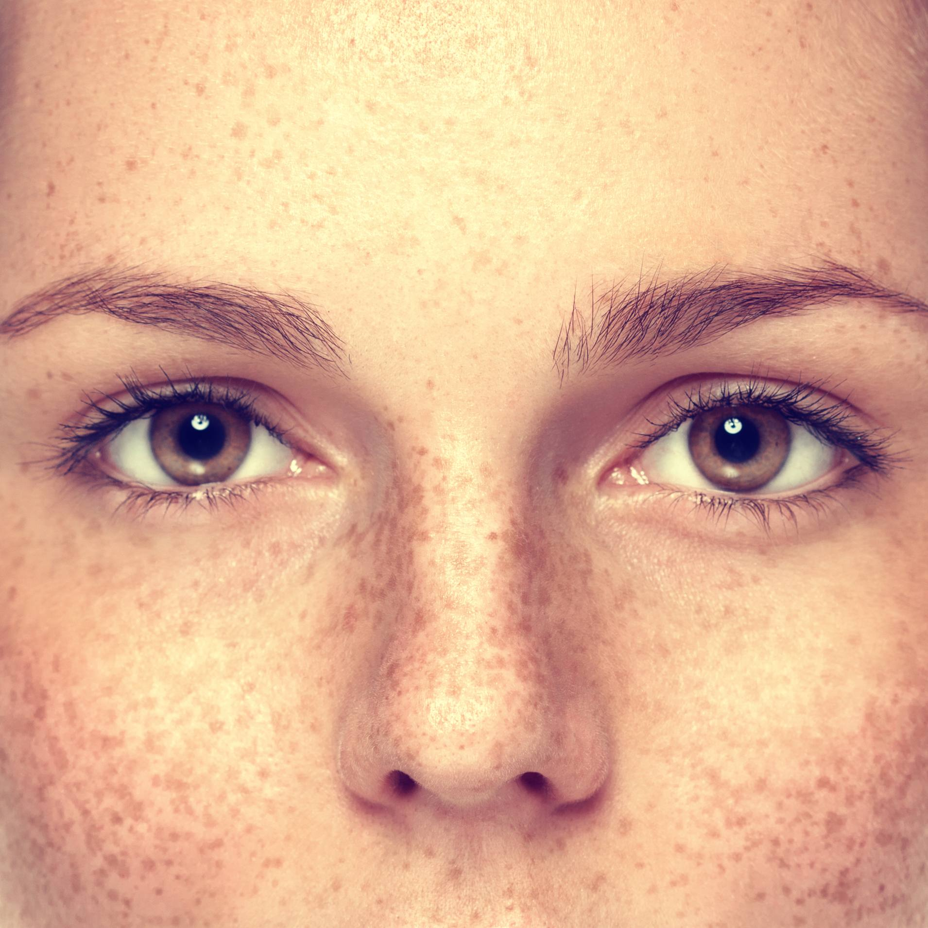 a close-up of the eyes, cheeks and nose of a young woman with freckles