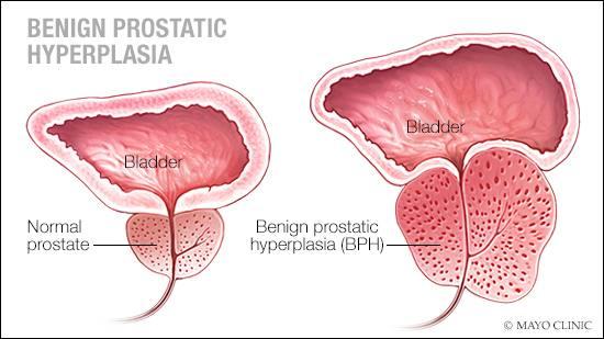 Ilustración médica de una próstata normal y de otra con hipertrofia prostática benigna