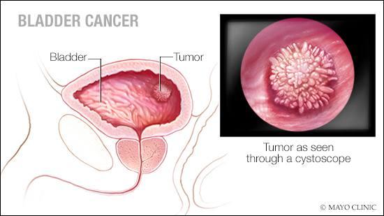 Ilustración médica del cáncer de la vejiga