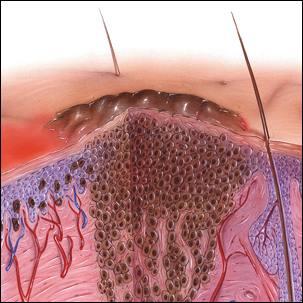 a medical illustration of melanoma