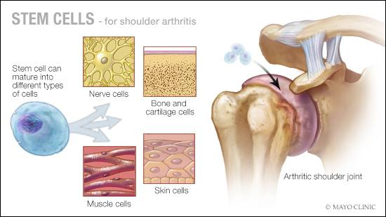 a medical illustration of stem cell therapy for shoulder joint arthritis