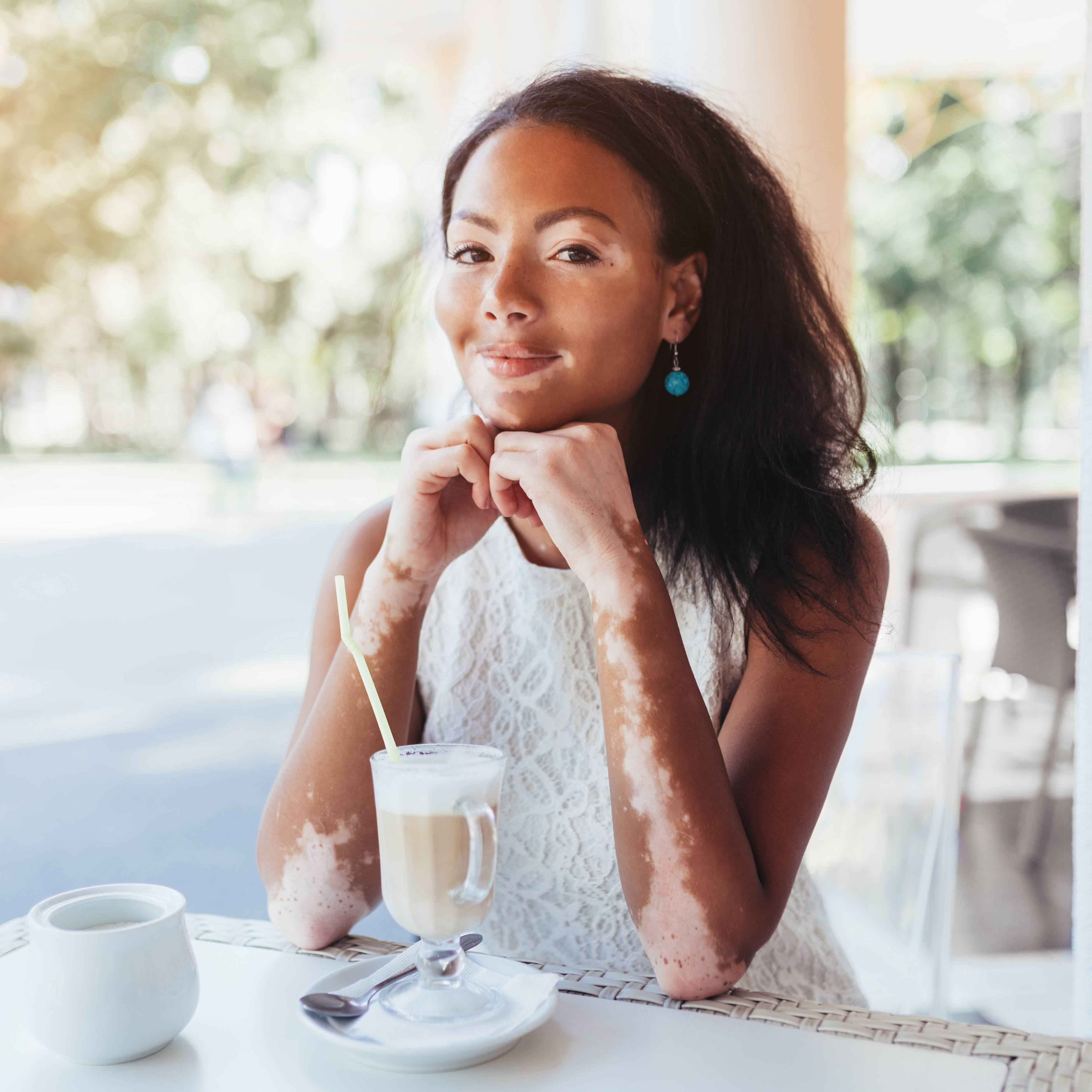 a young woman with vitiligo affecting her face and arms, sitting in an outdoor cafe drinking iced coffee