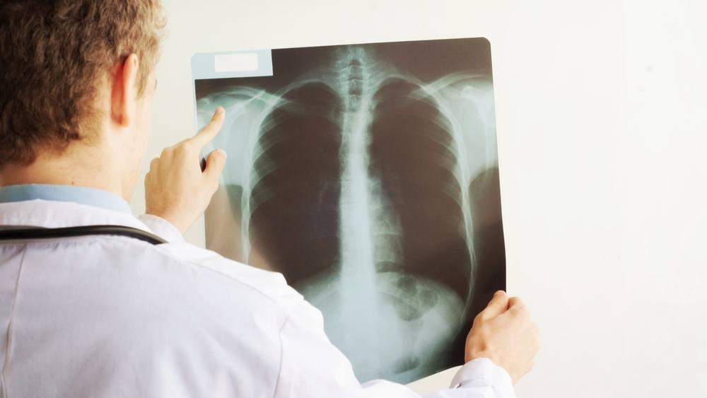 Un médico mira una radiografía