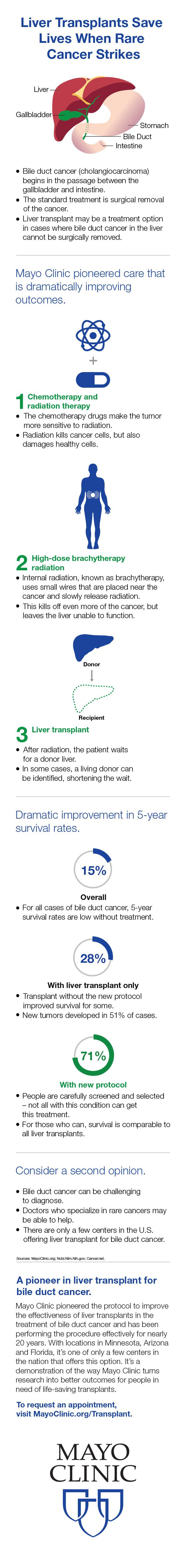 Infographic image about liver transplants and bile duct cancer