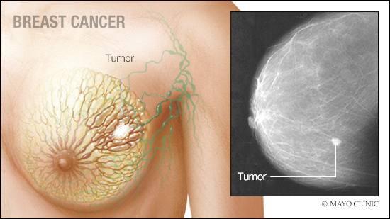 a medical illustration of breast cancer
