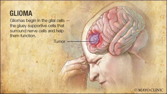 a medical illustration of glioma