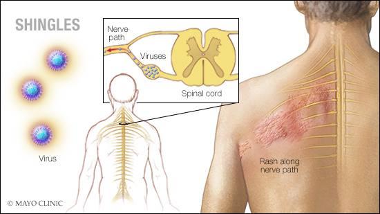 Ilustración médica del herpes zóster