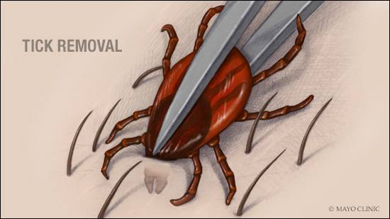 a medical illustration of the proper way to remove a tick that's embedded in the skin