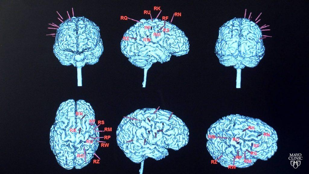epilepsy brain scans