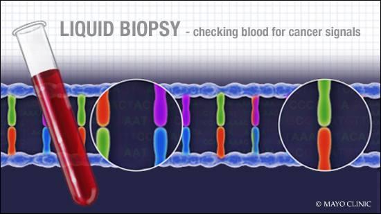 Ilustración médica de un tubo de ensayo con sangre y un filamento de ADN que representa el concepto de la biopsia líquida para cáncer