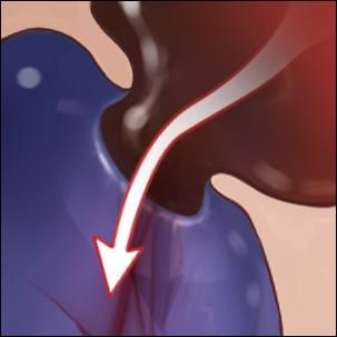 a medical illustration of atrial septal defect