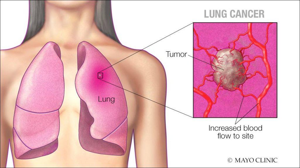 Ilustración médica de los pulmones, de un tumor del cáncer de pulmón y mayor flujo sanguíneo a ese sitio