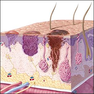 a medical illustration of three types of skin cancer - squamous cell carcinoma, basal cell carcinoma and melanoma