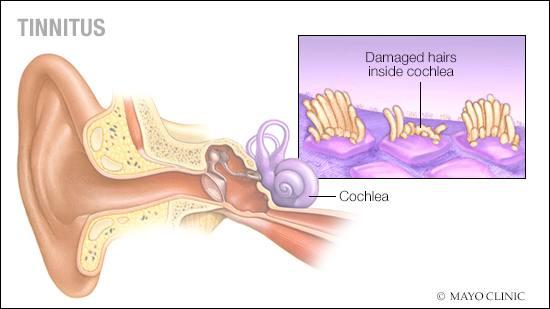 Ilustración médica del tinnitus