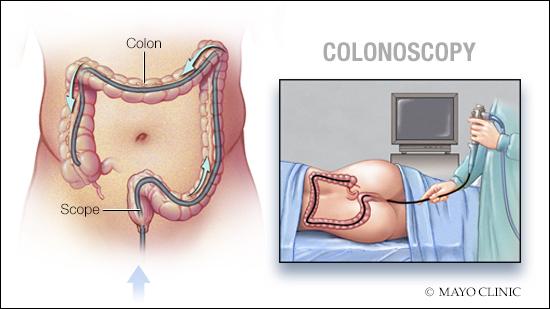 Ilustración médica de la colonoscopia