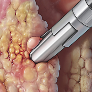 a medical illustration of mesothelioma