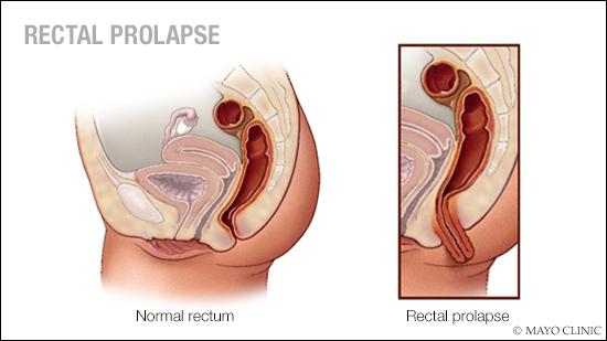 Ilustración médica del prolapso rectal