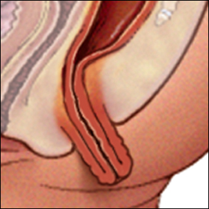 a medical illustration of rectal prolapse