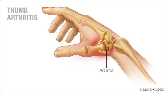 Ilustración médica de la artritis del pulgar
