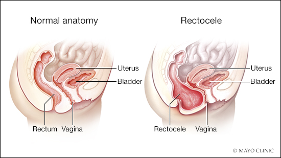 a medical illustration of normal rectum and vagina anatomy and a posterior vaginal prolapse
