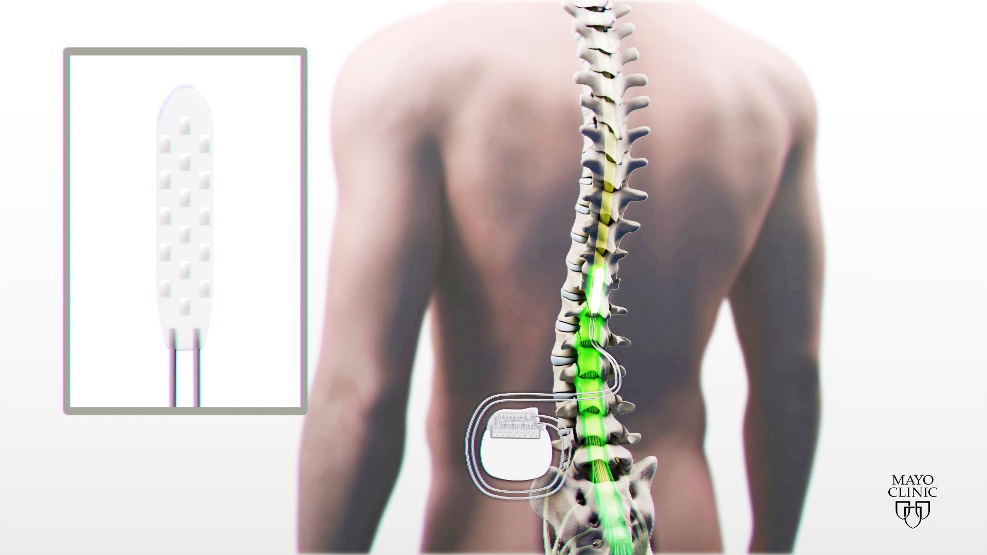 medical illustration of spinal stimulation device