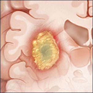a medical illustration of a pediatric brain tumor