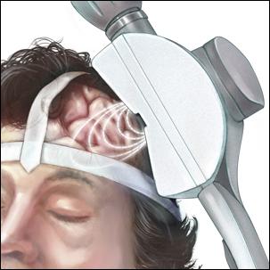 a medical illustration of transcranial magnetic stimulation