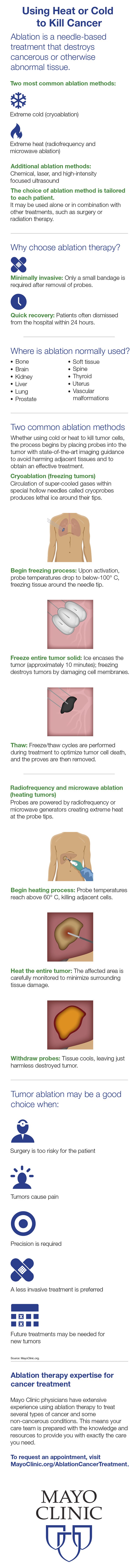 Infographic for ablation for cancer treatment
