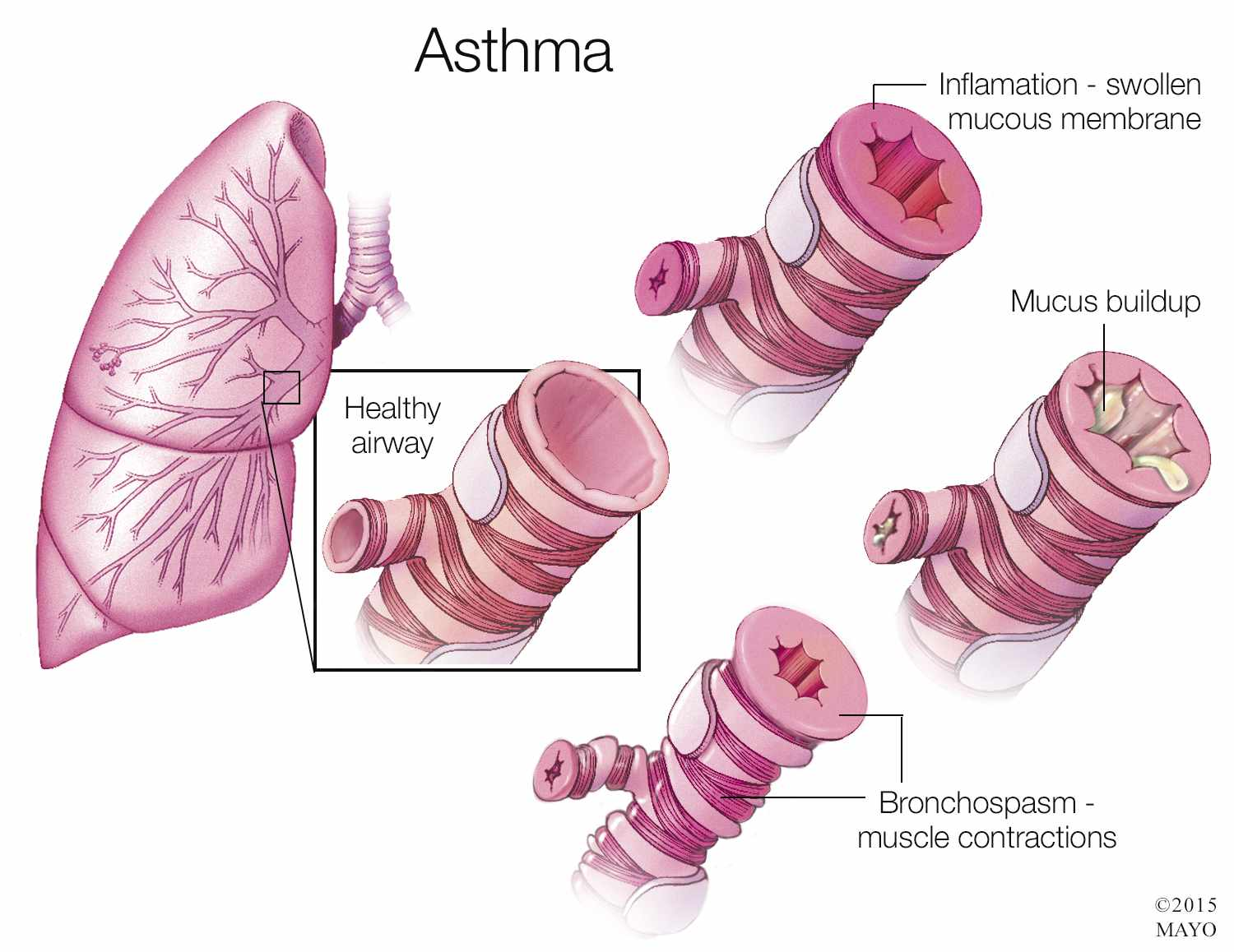 a medical illustration of the effects of asthma with inflamation and mucus