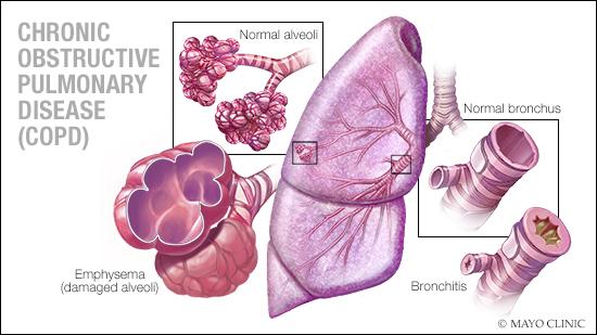 medical illustration of COPD