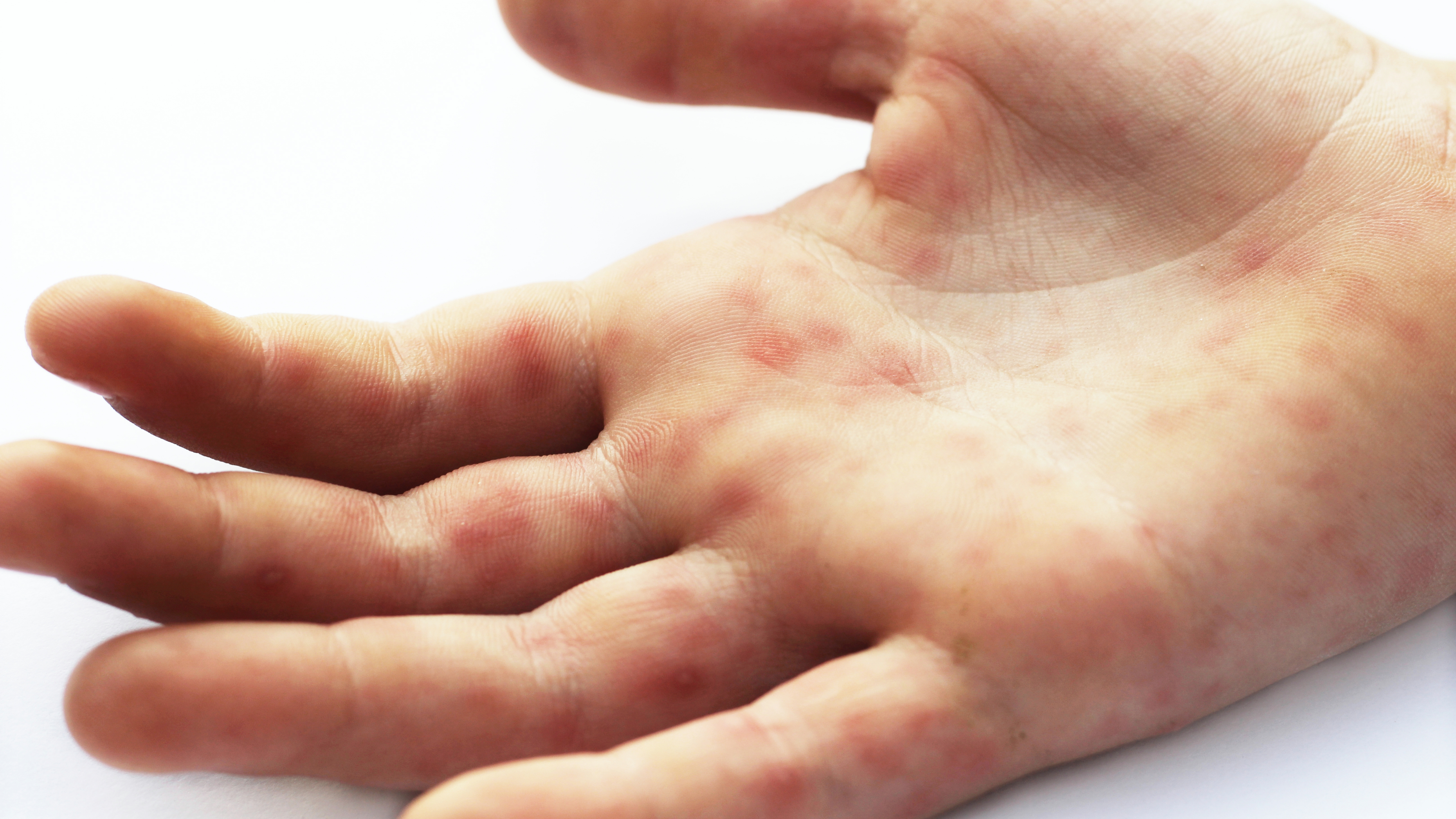 Hand foot and mouth disease with red rash on the palm of the hand. Enterovirus. Coxsackie virus.