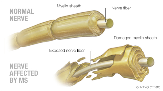 a medical illustration of a normal nerve and one affected by MS