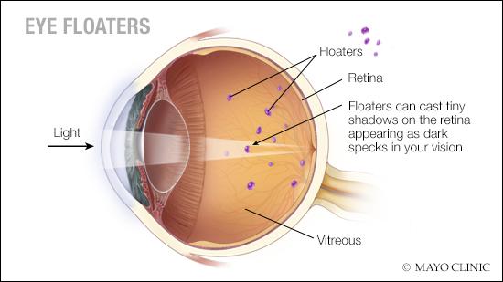 a medical illustration of eye floaters