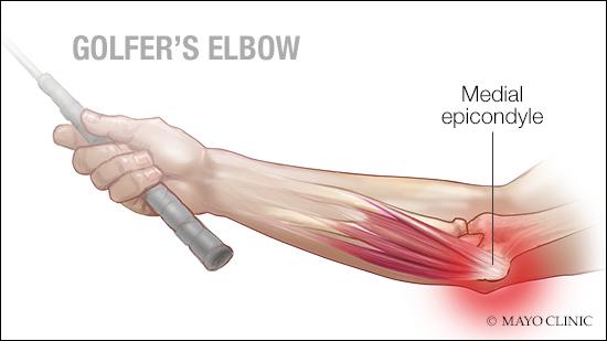 a medical illustration of medial epicondylitis, also known as golfer's elbow