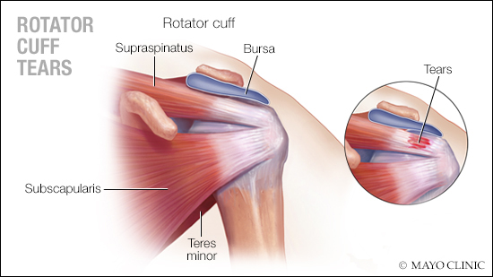 a medical illustration of rotator cuff tears