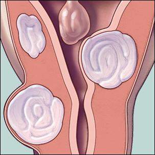 a medical illustration of uterine fibroids