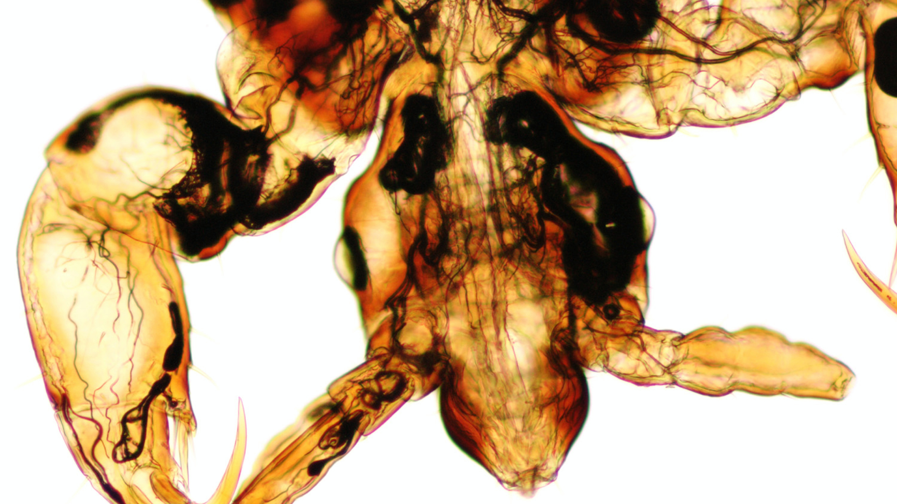 microscopic view of a head louse