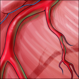 a medical illustration of coronary artery disease
