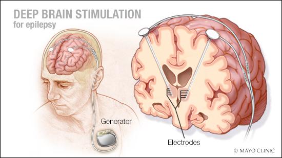 a medical illustration of deep brain stimulation for epilepsy