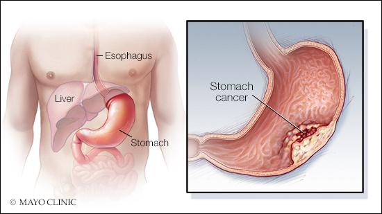 a medical illustration of stomach cancer