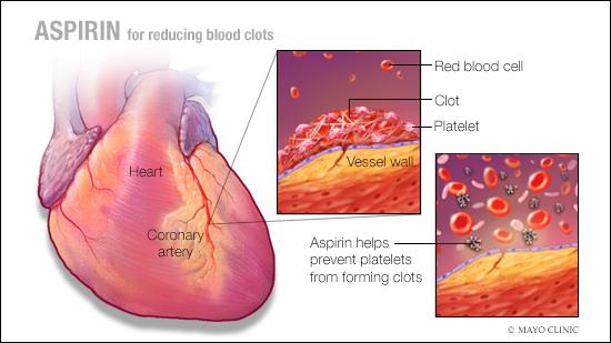 Ilustración médica de cómo la aspirina reduce el riesgo de coágulos sanguíneos