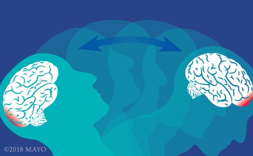 illustrated graphic of a person's head and brain with concussion injury at the front and the back of the head