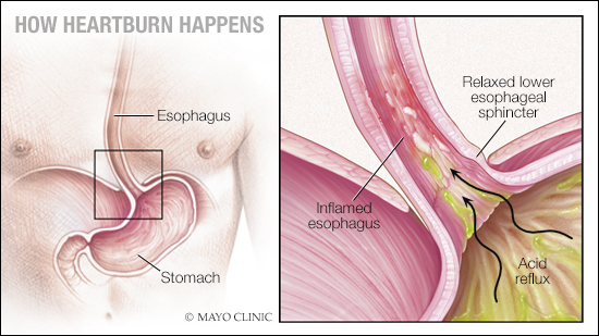 medical illustration of heartburn and GERD