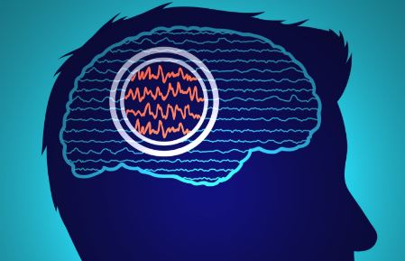 medical illustration or graphic of a brain having a seizure representing epilepsy