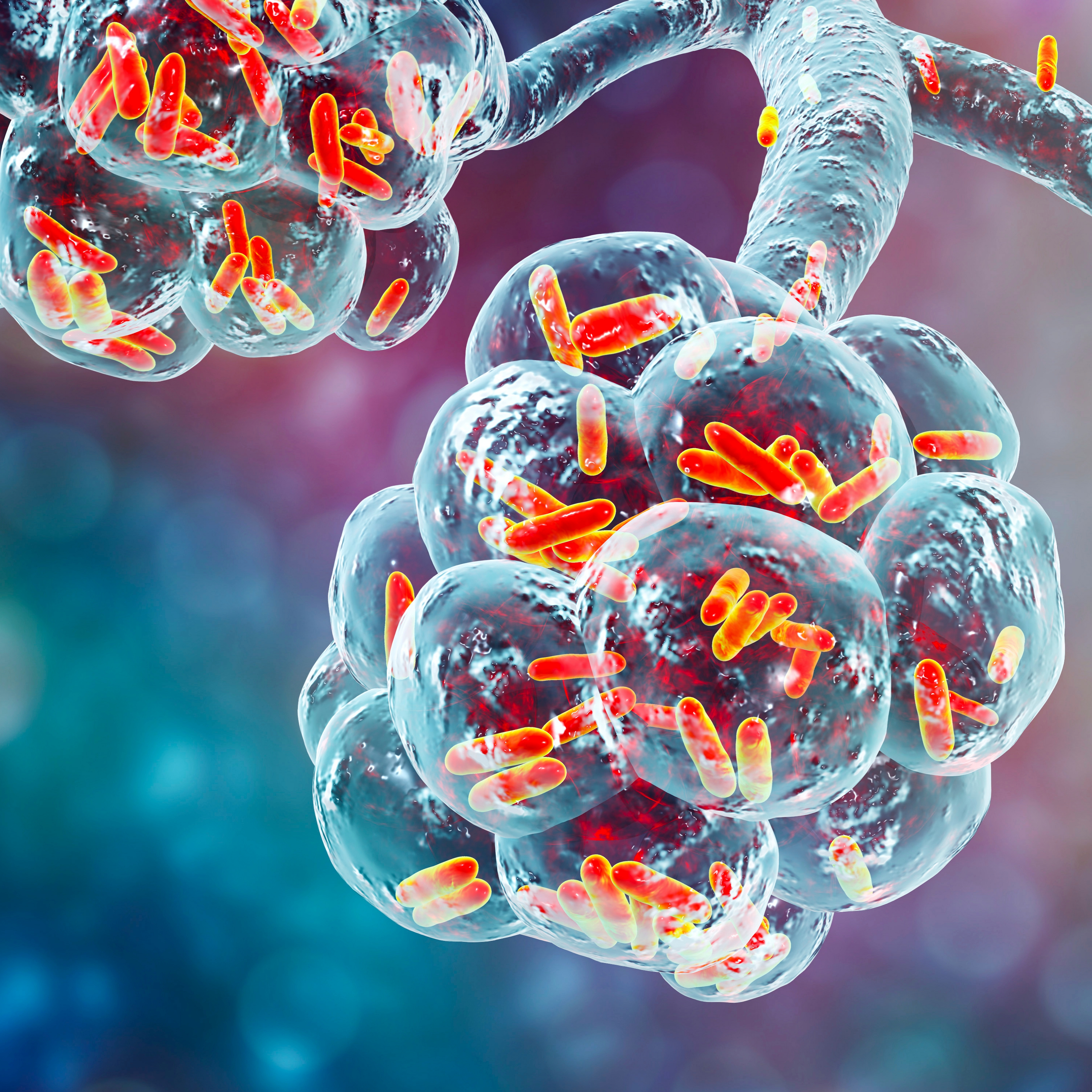 Bacterial pneumonia, medical concept. 3D illustration showing rod-shaped bacteria inside alveoli